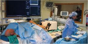 Ergospect Cardio Step device in the catheterization laboratory.