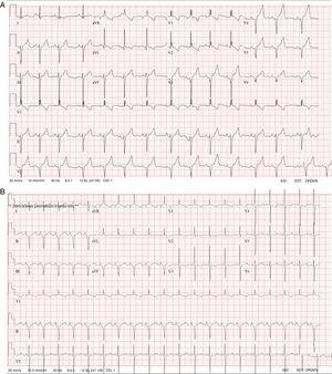 A: ECG from case 1. B: ECG from case 2, both showing wide QRS complexes for age, left axis deviation, right bundle branch block, and a negative pattern in the precordial leads. ECG: electrocardiogram.