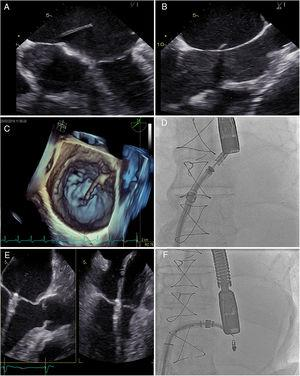 MitraClip implantation in a heart transplant recipient (biatrial suture technique). A and B: echocardiographic images of the transseptal puncture, in which the sheath was advanced while avoiding the more fibrous areas. C: 3D echocardiography showing the advance of the transseptal puncture catheter to the left atrium. D: fluoroscopy image of clip introduction into the left atrium. E: echocardiography of clip placement in the mitral valve. F: final fluoroscopy image of the implanted clip.
