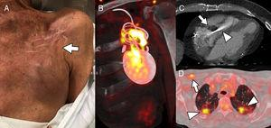 A, Patient 1. The patient was fitted with an implantable cardioverter-defibrillator (ICD) 7 months before reporting pain in the generator pocket, with no fever or other symptoms; blood cultures were negative. The image shows mild skin retraction in the region above the pocket (arrow), with no obvious signs of inflammation. B, Coronal oblique plane reconstruction of cardiac positron emission tomography/computed tomography (PET/CT) with 18-fluorodeoxyglucose (18F-FDG), showing heterogeneous tracer capture around the generator and the lead regions close to the pocket, indicating infection of the ICD; device cultures were positive for Staphylococcus caprae. C, Patient 2. Cardiac CT shows extensive vegetation (arrow) in the intraventricular segment of an abandoned pacemaker lead (arrowhead). D, Patient 3. 18F-FDG capture on PET/CT reveals pacemaker infection in the device leads (arrow) and the presence of bilateral septic pulmonary emboli (arrowheads).