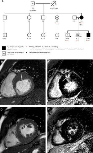 A: patients' familial pedigree. Black arrow points to index case. B: case 2, cardiac magnetic resonance. Short axis-basal. C: case 2, cardiac magnetic resonance. Late gadolinium enhancement in the basal anterior segment (arrow). D: case 2, cardiac magnetic resonance. Short axis-papillary muscles. E: case 2, cardiac magnetic resonance. Late gadolinium enhancement in the mid inferoseptal segment (arrow). COPD, chronic obstructive pulmonary disease; HTx, heart transplant.