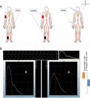 "A: common methods to measure arterial stiffness. Left: carotid-ankle vascular index (CAVI). Center: brachial-ankle pulse wave velocity (baPWV). Right: carotid-femoral pulse wave velocity (cfPWV). Pictured on the right is the use of a tonometer to obtain the vascular waveform; however, a cuff can also used in both the carotid and the femoral locations. B: derivation of central augmentation index. The panel has 2 assembled waveforms labeled radial (""R"") and aortic (""A""). The operator records 10seconds of radial waveform shown in the upper portion of panel B. The waveform is calibrated by entering the brachial blood pressure at the time of measurement. The software uses an algorithm to estimate the central pressure waveform using the radial waveform data and displays the central aortic pressure waveform on the right. In this example, the brachial blood pressure was 130/96mmHg. The central aortic pressure is 122/97mmHg. The pulse pressure in the central aortic waveform, shown in the blue bracket, is 25mmHg (calculated as the systolic minus the diastolic value). The central aortic waveform upstroke clearly changes slope at 116mmHg, marked by a green dot on the right border of the aortic waveform. The systolic value (122mmHg) minus the value at the deflection point (116mmHg) yields a difference of 6mmHg shown in the orange bracket, representing the augmentation pressure experienced by the left ventricle when completing systole. This augmentation pressure results from the backward-traveling pressure wave, which arrives at the left ventricle in late systole and contributes to the final central pressure waveform. The central augmentation index is the ratio of this augmented pressure divided by the aortic pulse pressure."