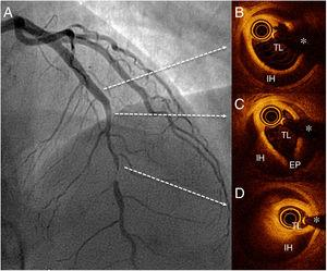 Findings on angiography (A) and optical coherence tomography (B-D) before percutaneous coronary intervention. EP, entry port; IH, intramural hematoma; TL, true lumen; *, guidewire artifact.