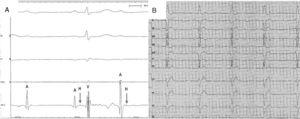 A, Electrophysiological study showing intra-Hisian atrioventricular block with atrial (A), Hisian (H), and ventricular (V) electrograms. B, Electrocardiogram 2 years after the episode, with complete atrioventricular block and pacemaker dependence.