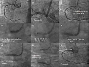 Angiographic images of the RCA showing a severely fibrocalcified ostial plaque, stent restenosis in the mid segment and severe stenosis in the distal segment, and the sequence of treatment (explanatory labels in each image). The dashed lines in panels C and I mark the stented segments. NC, noncompliant; RCA, right coronary artery.