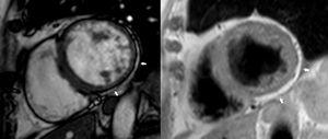 Short-axis still cine image and T1-weighted image showing myocardial thinning on the inferior and lateral walls at the expense of a circumferential band of subepicardial fatty infiltration (arrows).