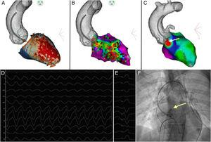 Transmural scar involving the anteroseptal area with epicardial ablation from the aortic cusps, guided by pace mapping (PaSo module of the CARTO system) and a selective angiogram showing a safe distance between the origin of the coronary arteries and the ablation catheter.