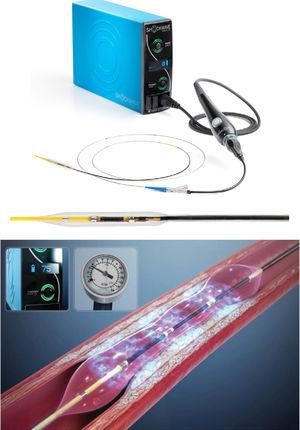 Coronary Rx Lithoplasty System (Shockwave Medical, Inc, Fremont, CA, United States). Adapted with permission from Shockwave Medical.
