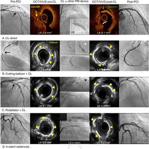 Optical coherence tomography and intravascular ultrasound characterization of calcified lesions and the effects of coronary lithoplasty and the concomitant use of other plaque-modification devices. Black arrows represent severe calcified lesions. White asterisk represents cutting-balloon. Black asterisk represents rotablator. CL, coronary lithoplasty; IVUS, intravascular ultrasound; LA, luminal area; LB, lithoplasty balloon; OCT, optical coherence tomography; PCI, percutaneous coronary intervention; PM, plaque-modification.
