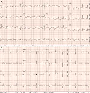 ECG. A: on admission. B: postreperfusion.