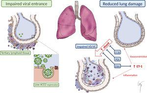 "Possible explanations for the benign course of COVID-19 in PAH patients. Impaired viral entrance to pulmonary cells due to the presence of ""tertiary lymphoid tissue"" and reduced ACE2 expression. Reduced lung damage due to impaired ""vasotonic"" properties and to PAH vasodilator treatment, minimizing intrapulmonary shunt. Reduced inflammatory response mediated by ET-1 due to the effect of ERA. ACE2, angiotensin-converting enzyme 2; CCB, calcium-channel blocker; ERA, endothelin receptor antagonist; ET-1, endothelin-1; PDi, phosphodiesterase-5 inhibitor; VD/VC, vasodilatation/vasoconstriction."
