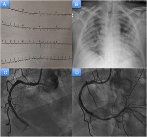 A: admission electrocardiogram. B: admission chest radiograph. C: coronary angiogram showing thrombotic occlusion of the medial-distal segment of the right coronary artery. D: coronary angiogram showing occlusion of the posterior descending artery after migration of the thrombus.