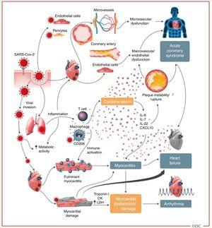 """Cardiovascular involvement in COVID-19 – key manifestations and hypothetical mechanisms. SARS-CoV-2 anchors on trans-membrane angiotensin-converting enzyme-2 to enter the host cells including type-2 pneumocytes, macrophages, endothelial cells, pericytes and cardiac myocytes leading to inflammation and multi- organ failure. Infection of endothelial cells or pericytes is of particular importance because this could lead to severe microvascular and macrovascular dysfunction. In addition, immune over-reactivity can potentially destabilize atherosclerotic plaques and explain the development of acute coronary syndromes. Infection of the respiratory tract, particularly type-2 pneumocytes, by SARS-CoV-2 is manifested by the progression of systemic inflammation and immune cell over-reaction leading to """"cytokine storm"""", resulting in increased levels of cytokines such as IL-6, IL-7, IL-22 and CXCL10. Subsequently, it is possible that activated T cell and macrophages may infiltrate infected myocardium resulting in the development of fulminant myocarditis and sever cardiac damage. This process may be further intensified by a cytokine storm. Similarly, the viral invasion my case cardiac myocyte damage directly leading to myocardial dysfunction and contribute to the development of arrhythmias.6 Reproduced from the original work """"ESC Guidance for the Diagnosis and Management of CV Disease during the COVID-19 Pandemic"""" https://www.escardio.org/Education/COVID-19-and-Cardiology/ESC-COVID-19-Guidance.7 Permission obtained from © The European Society of Cardiology 2020. All rights reserved."""