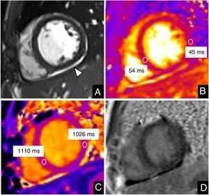 Cardiac magnetic resonance imaging in a 13-year-old boy with COVID-19 and myocarditis. Mid-ventricular short axis view. A: cine image. B: T2 map. C: native T1 map. D: late gadolinium enhancement (LGE). The study showed mild pericardial effusion (arrowhead in A). Slightly increased values in the ventricular septum were demonstrated on T2 maps (54ms vs 45ms of remote myocardium) and native T1 values were high, particularly in the ventricular septum (1110ms vs 1026ms of remote myocardium) in keeping with myocardial edema. No LGE was observed.