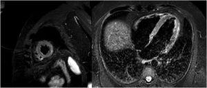 Magnetic resonance image with late enhancement in the lateral mediastinal region and edema on T2-enhanced STIR sequences.