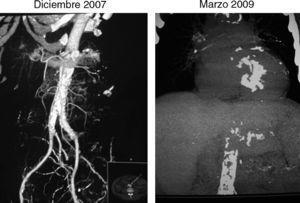 Imágenes comparadas de la progresión de las calcificaciones a nivel de grandes vasos abdominales.