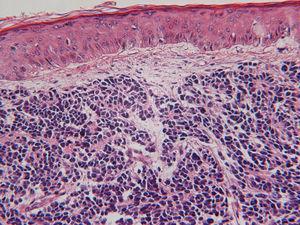 Carcinoma de células de Merkel: CK 20 paranuclear. TTF-1negativo.