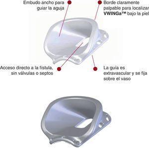 Orificios de sutura y localización del embudo de la guía VWNG.