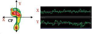 Desviación del centro de presiones en el eje lateral y anteroposterior. X: eje X, plano frontal, desviación lateral&#59; Y: eje Y, plano sagital, desviación anteroposterior&#59; CP: centro de presiones.