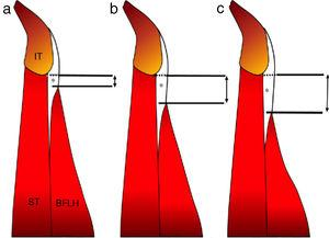 Proximal BFLH free tendon length is measured (in cm) from the most inferior margin of the ischial tuberosity to the point where the first muscle fibers start to insert onto the tendon. IT: ischial tuberosity&#59; ST: semitendinosus&#59; BFLH: long head of the biceps femoris&#59; *: free tendon. (a) Short free tendon, (b) medium free tendon and (c) long free tendon.