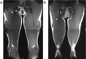 T1 coronal MRI of a short free tendon (a) and long free tendon (b) are shown. Arrowheads show the most inferior margin of the ischial tuberosity and arrows show the point where the first muscle fibers started to insert onto the tendon.