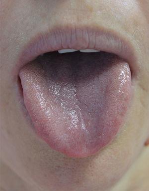 Aspecto de la lengua en su intervención en la primera sesión.