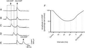 Inhibición del primer componente negativo del potencial del dorso de la médula espinal (N1-CDP) producido por el estímulo eléctrico del nervio sural (SU-CDP) y registrado en el segmento espinal L6 antes de la EA (A) durante la EA de 2Hz en Zusanli (E 36) y Sanyinjiao (BP 6), 70ms, previo al estímulo de prueba aplicado al nervio sural (B), 40ms (C), 20ms (D), y 30ms después de la respuesta N1-CDP producida por el nervio sural (E). Representación gráfica del porcentaje de reducción de la amplitud del componente N1-CDP durante la estimulación con EA. 30-PSU-CDP: 30ms posterior al componente N1 del CDP producido por el estímulo eléctrico del nervio sural; CDP: cord dorsum potential; EA: electroacupuntura. Adaptada de Quiroz-González et al., 201411.