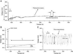 A) Potencial de reposo y actividad eléctrica espontánea de una célula de un corpúsculo de Bonghan (BHC). B) En el momento de la inserción microcapilar en la membrana del BHC, el potencial cayó abruptamente alrededor de 38±15,5mV (n=11) desde el potencial de referencia. Vd es la caída del potencial; potencial aumentado lentamente a un potencial de reposo de 10,5±8,4mV (n=11). Ve es un pequeño aumento (línea punteada). Te es el tiempo de aumento: 18,1±14,0 s (n=11). El potencial de reposo se mantuvo estable con pequeñas fluctuaciones de fondo; la actividad irregular de picos espontáneos en el potencial de reposo se alzaron durante el tiempo de estimulación (Ds) de alrededor de 16,6±14,9 s (n=11). C) La actividad espontánea registrada en un período expandido en tiempo y voltaje. La amplitud promedio (Vs) fue de 1,2±0,6mV (n=11) y el período promedio (Ts) de 0,8±0,6 s (n=11). Los picos tenían un ancho medio promedio (Fs) de 0,27±0,19 s (n=11)57.