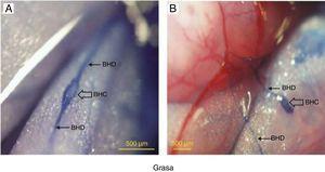 Tinción de azul tripán de conducto de Bonghan (BHD) y corpúsculo de Bonghan (BHC) dentro de los tejidos adiposos. A) Un BHC y un BHD conectado dentro del tejido adiposo alrededor del intestino delgado de una rata. B) Un BHC y dos BHD cercanos en el mismo intestino delgado de la rata. Vasos sanguíneos y tejidos adiposos no teñidos.