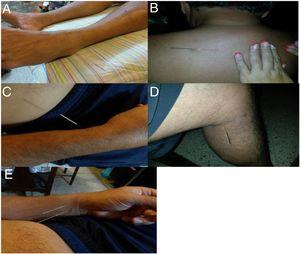 Puntos de terapia de acupuntura 2. A: 4 Bazo-Páncreas (4 BP). B: 11 Vejiga (11V). C: 8 Pulmón (8 P). D: 10 Riñón (10 R). E: 6 Maestro del Corazón (6 MC).