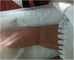 Cambios en la piel de todo el cuerpo al inicio del tratamiento.