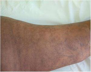 Cambios en la piel a las 10 semanas de tratamiento.