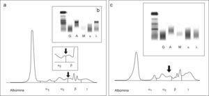 a) Proteinograma del suero del paciente del caso 2; en el recuadro pequeño se muestra una ampliación de la zona comprendida entre α2 y β b) Inmunofijación del suero del paciente del caso 2. c) Proteinograma e inmunofijación de una muestra de suero con una concentración alta de bilirrubina.