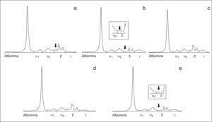 Inmunosustracción realizada al suero del paciente del caso 2. En el trazado electroforético se observa que además de la zona de estudio parece que existe componente monoclonal superpuesto a la transferrina. a) Tratamiento del suero con antisuero anti-IgG. b) Tratamiento del suero con antisuero anti-IgA observándose que se produce la inmunosustracción de la banda que aparecía entre α2 y β, mostrándose en el recuadro pequeño una ampliación de la zona. c) Tratamiento del suero con antisuero anti-IgM. d) Tratamiento del suero con antisuero anti cadena ligera kappa. e) Tratamiento del suero con antisuero anti cadena ligera lambda observándose que se produce la inmunosustracción de la banda que aparecía entre α2 y β, mostrándose en el recuadro pequeño una ampliación de la zona.