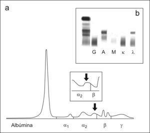 a) Proteinograma del suero del paciente del caso 3, en el recuadro pequeño se muestra una ampliación de la zona comprendida entre α2 y β. b) Inmunofijación del suero del paciente del caso 3.