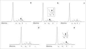 Inmunosustracción realizada al suero del paciente del caso 3. a) Tratamiento del suero con antisuero anti-IgG. b) Tratamiento del suero con antisuero anti-IgA observándose que se produce la inmunosustracción de la banda que aparecía entre α2 y β, mostrándose en el recuadro pequeño una ampliación de la zona. c) Tratamiento del suero con antisuero anti-IgM. d) Tratamiento del suero con antisuero anti cadena ligera kappa. e) Tratamiento del suero con antisuero anti cadena ligera lambda observándose que se produce la inmunosustracción de la banda que aparecía entre α2 y β, mostrándose en el recuadro pequeño una ampliación de la zona.