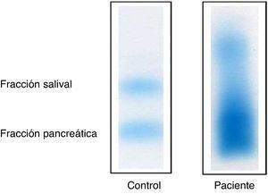 Electroforesis en gel de agarosa. Electroforesis: patrón difuso de la fracción salival y pancreática en un paciente con actividad α-amilasa elevada.