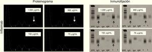 Proteinograma e inmunofijación positivas y negativas de infliximab, a diferentes concentraciones.