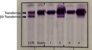 Inmunofijación para la detección cualitativa de la β2-transferrina. En la figura se señalan las bandas correspondientes a la transferrina y a la β2-transferrina. LCR: muestra de líquido cefalorraquídeo, utilizada como control positivo; Suero: muestra de suero, utilizada como control negativo; 1, 3, 4: muestras de 3 pacientes con resultado negativo; 2: muestra de un paciente con resultado positivo.