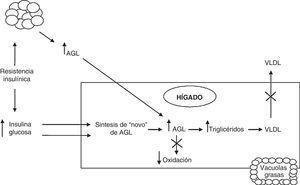 Fisiopatogenia de la EHGNA. AGL: ácidos graso libres; VLDL: lipoproteína de muy baja densidad.