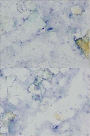 Microscopia óptica. Podemos observar macrófagos gigantes y elongados, cristales romboidales de colesterol todo ello sobre un fondo granular eosinofílico y amorfo.