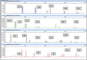 Feto con trisomía 18. En la figura observamos un patrón trialélico para el marcador 18M (GATA78F11) y un patrón trisómico dialélico (1:2 o 2:1) para los marcadores 18C (D18S535), 18B (D18S978), 18D (D18S386) y 18J (D18S535).