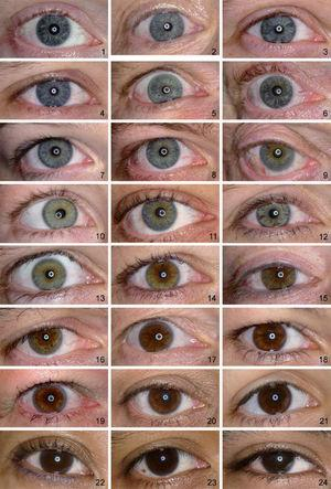 Reference set for classification of iris pigmentation, in order from least (number 1) to most (number 24) iris pigmentation. The presented order is based on ranking by 4 observers. For practical use, this figure can be obtained from the authors upon request.