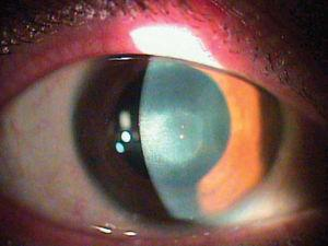 A preoperative picture of the eye with post-herpetic corneal scar.