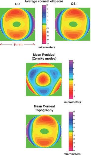 Topography of the mean cornea: Average ellipsoids for right and left eyes (upper panels); average deformation (central panel); and average topography (lower panel). Notice the different scale used for the residual.