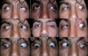 Moderate ptosis in a left eye with elevation deficit.