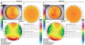 Pre-treatment topographical elevation maps of the right (R) and left (L) eyes. Those elevation maps reveals: OD: a difference of 61.5μm between meridians, OS: a difference of 65.5μm between meridians. According to general guidelines these differences justify the use of Dual Axis lens.