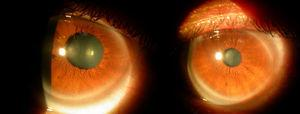 Images from dynamic pupillometry when pupil diameters were examined under photopic conditions (right: left eye; left: right eye). Significant difference between eyes could be observed.