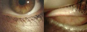 The lower lid and upper of the right eye observed before treatment.