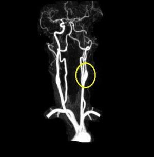 MRA of the acute left carotid artery dissection.